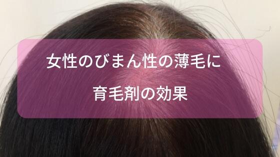 女性のびまん性の薄毛に育毛剤の効果