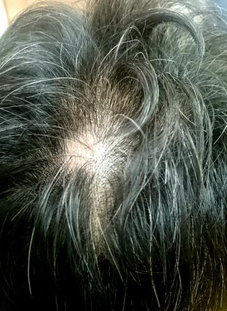 つむじの薄毛の例その1