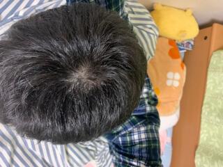 高校生のつむじハゲ疑惑その3