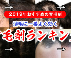 2019年オススメの育毛剤ランキング